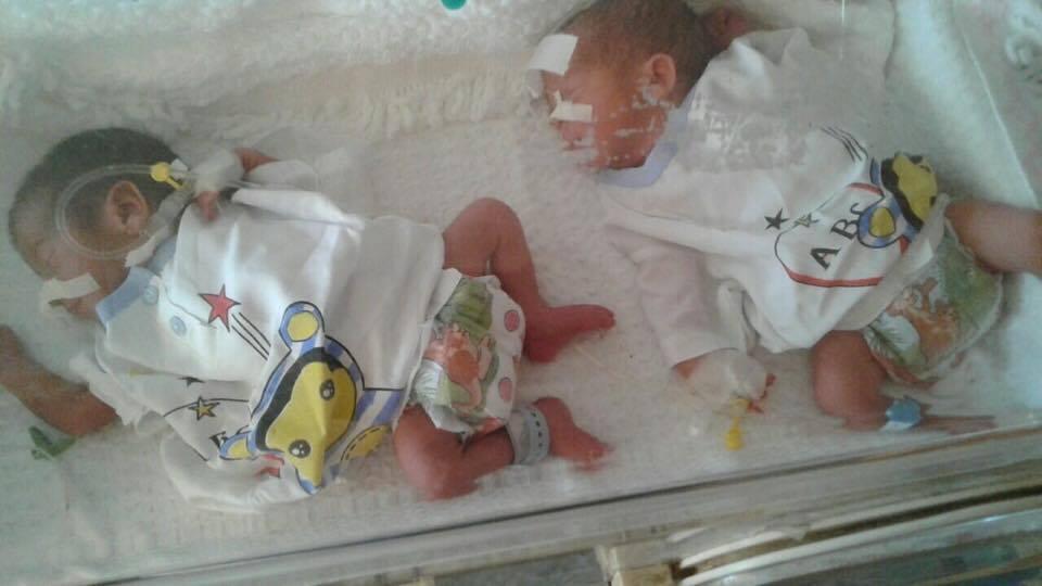 ولادة ثلاثة توائم في المعهد