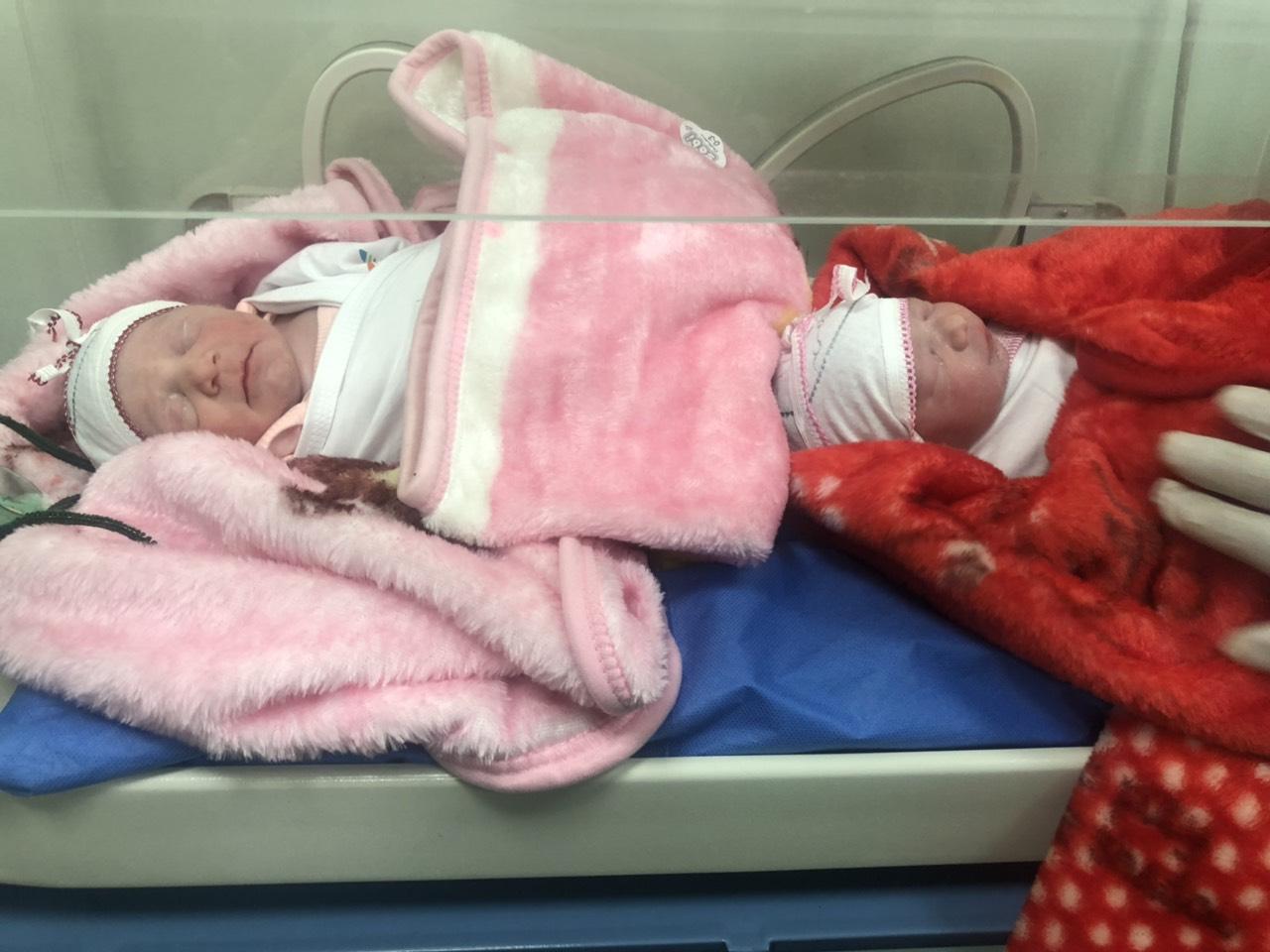 ولادة تؤام